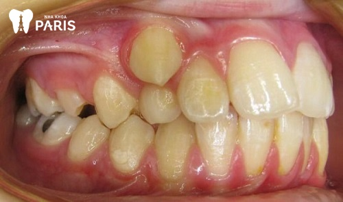 Kinh nghiệm nhổ răng khểnh