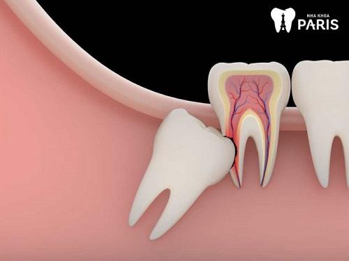 kinh nghiệm nhổ răng khôn