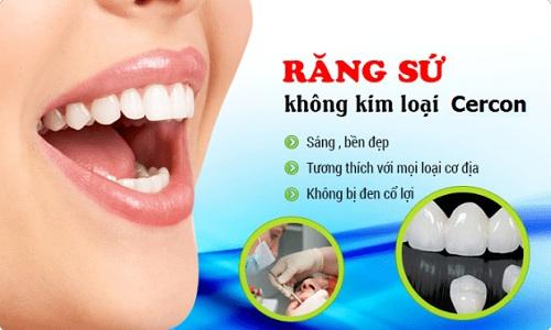 Làm răng sứ cercon có tốt không