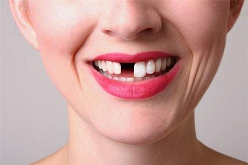Nằm mơ thấy rụng 1 cái răng
