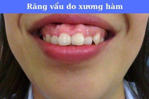 Người răng vẩu là như thế nào