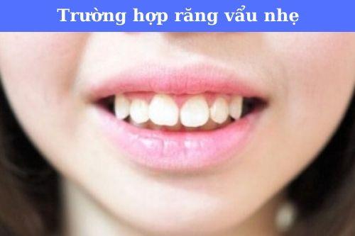 Người răng vẩu nhẹ