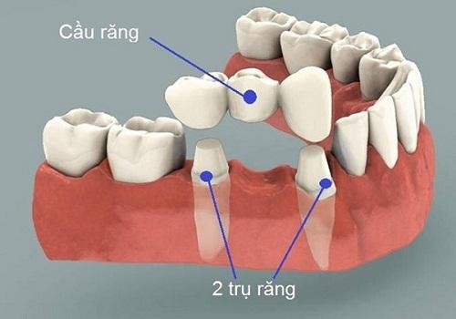 nhổ răng bao lâu thì làm cầu răng