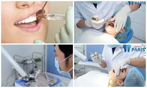 nhổ răng nguy hiểm không
