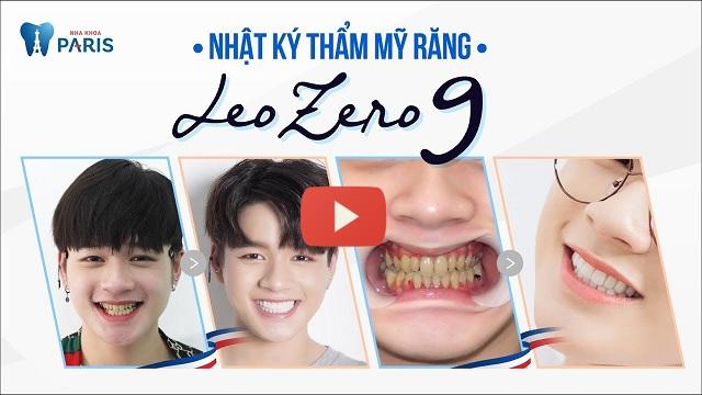 quá trình làm răng sứ mất bao lâu