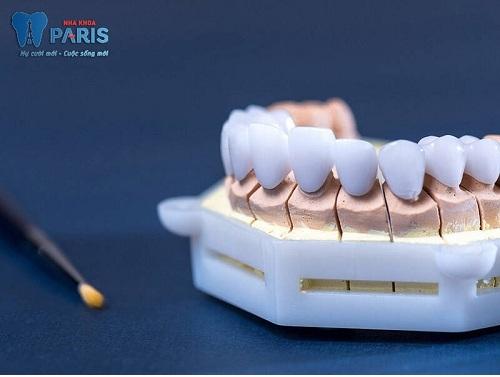 Răng sứ không kim loại cercon