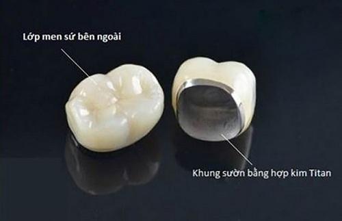 Răng sứ kim loại titan có mấy loại