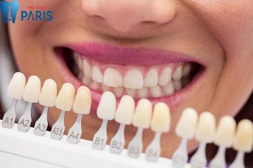Răng toàn sứ cercon giá bao nhiêu tiền