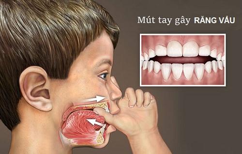răng vẩu xấu xí