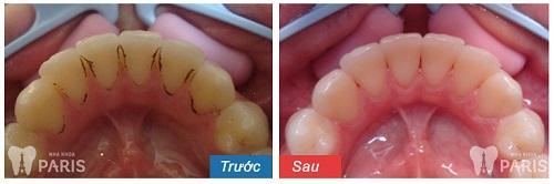 Sơ đồ hàm răng người trưởng thành có bao nhiêu cái