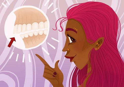 Sửa răng vẩu