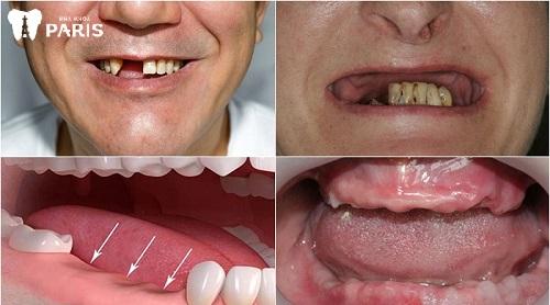 tiêu xương ổ răng là gì