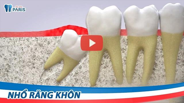 Cách trị đau răng khôn vĩnh viễn