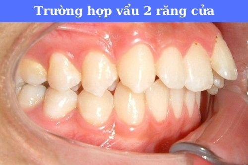 vẩu 2 răng cửa