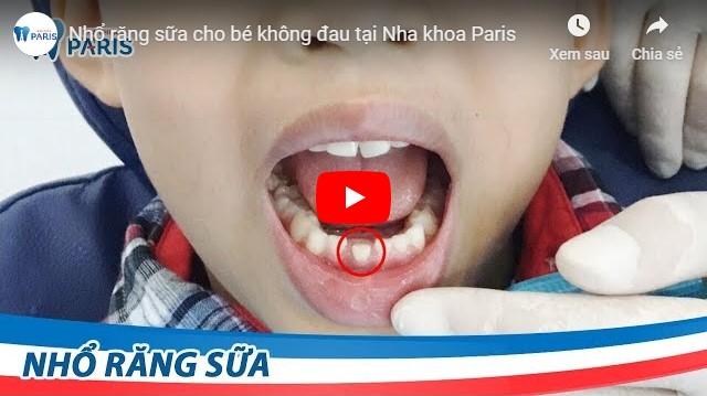 Video chi phí nhổ răng sữa giá bao nhiêu