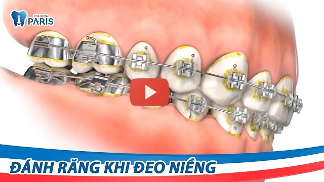 Bàn chải đánh răng cho người niềng răng