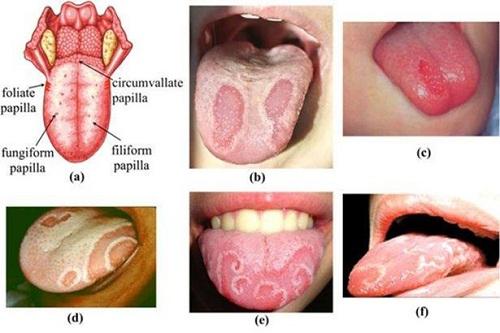 Bệnh tưa lưỡi là gì