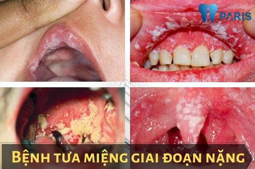 bệnh tưa miệng là gì