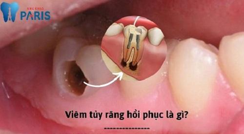 Bệnh viêm tủy răng có hồi phục