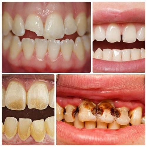 Bị mẻ răng có ảnh hưởng gì không