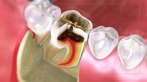Bị viêm tủy răng có nguy hiểm không