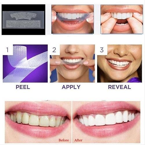 cách xài miếng dán trắng răng