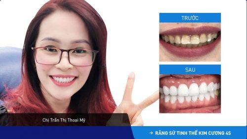 Chân răng bị đen thì phải làm sao