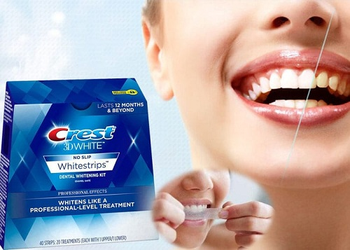 có nên dùng miếng dán trắng răng crest không