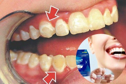 Dùng miếng dán trắng răng có hại không