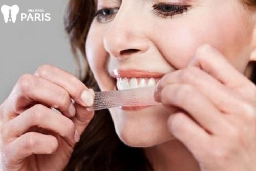 Dùng miếng dán trắng răng có tốt không