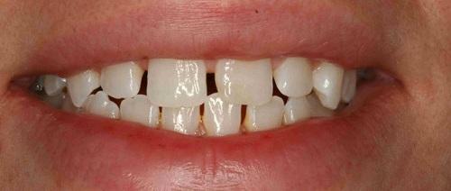 Kẽ răng bị đen ở giữa