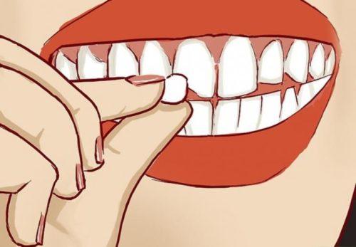 răng bị mẻ phải làm sao