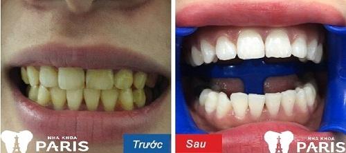 răng đen có tẩy trắng được không