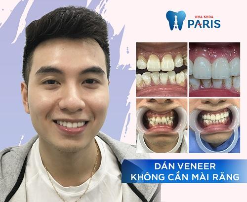 Răng mẻ phải làm sao