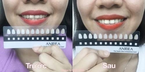 review miếng dán trắng răng anriea 7 ngày