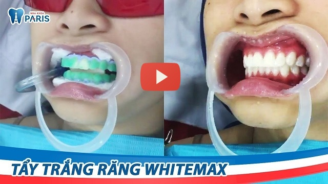 Review miếng dán trắng răng crest whitestrips