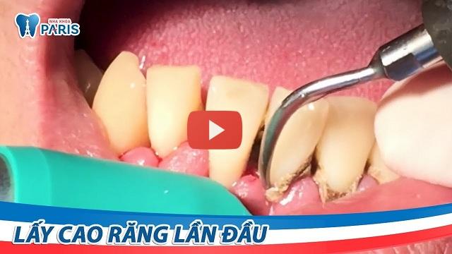 Răng đen chữa bằng cách nào
