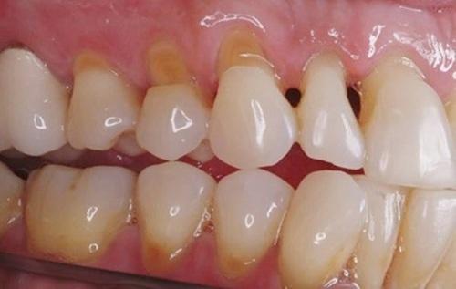 Bệnh mòn cổ chân răng là gì