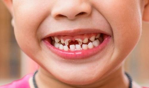 Bệnh sún răng là gì
