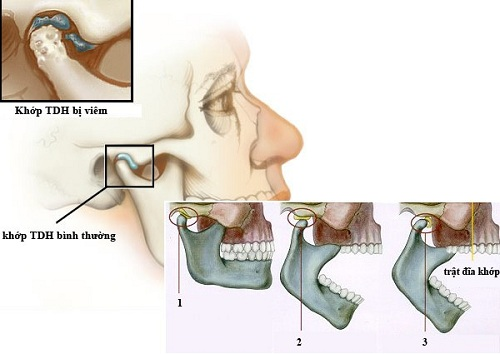 Bệnh viêm khớp thái dương hàm là gì