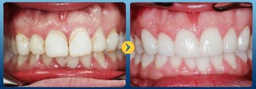 cách điều trị mòn cổ chân răng