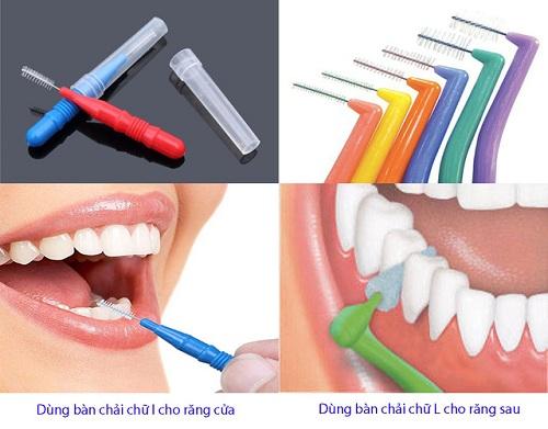 Có nên dùng bàn chải kẽ răng