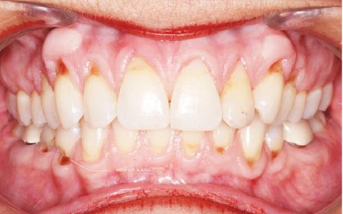 Hình ảnh mòn cổ răng
