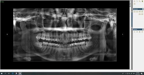 Chia sẻ kinh nghiệm nhổ răng khôn bao lâu thì lành
