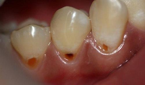 Răng bị mòn dần