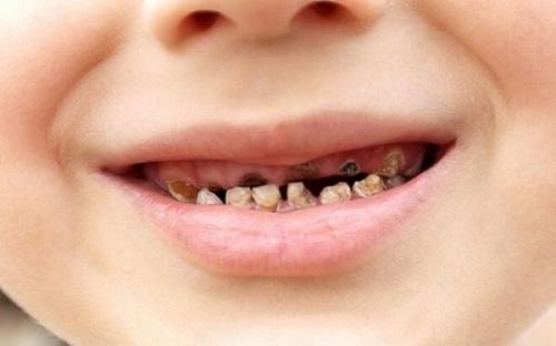 Răng sún là gì